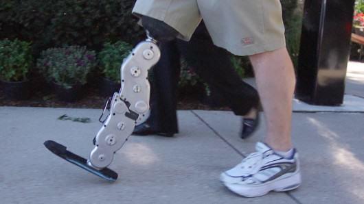 Un avance de tecnología integrada en una pierna biónica